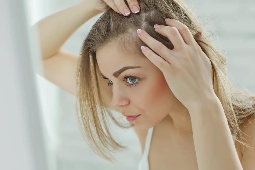 perte-cheveux-femmes-remedes